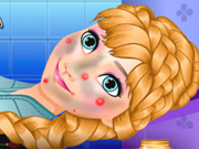 game Anna Skin Treatment