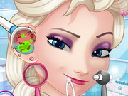 game Elsa Ear Doctor